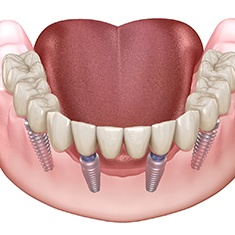 Digital image of All-on-4 dental implants.