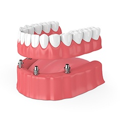 Dental model of All-On-4 dental implants.