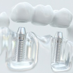 Image of each component in dental implant bridge.