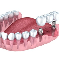 Model of a dental implants supporting a bridge.