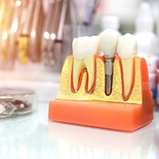Model of dental implants in Arlington Heights and coin jar