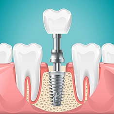 Diagram of dental implants in Arlington Heights