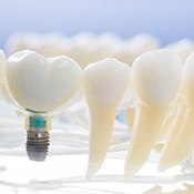Model of dental implants in Arlington Heights