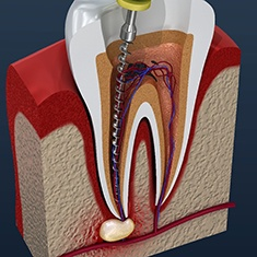 Model of root canal procedure for an infected tooth.