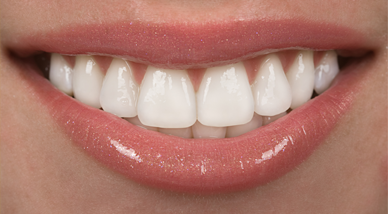 attractive smile with porcelain veneers