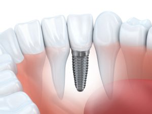 arlington heights implant dentist provides excellent care