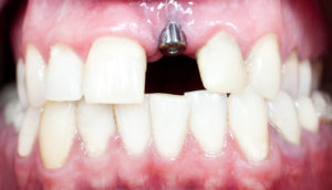 gapped teeth with dental implant
