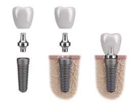 Model of the 3 stages of implant placement