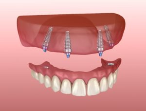 Image of dental implants supporting a denture.