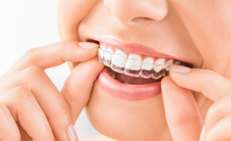 Closeup of smiling woman putting on Invisalign retainer